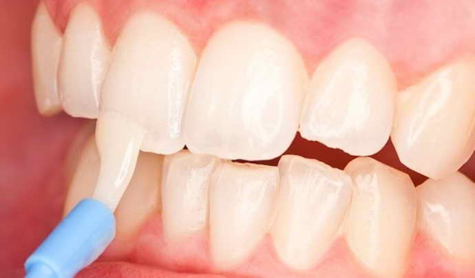 методы лечения трещин на зубах