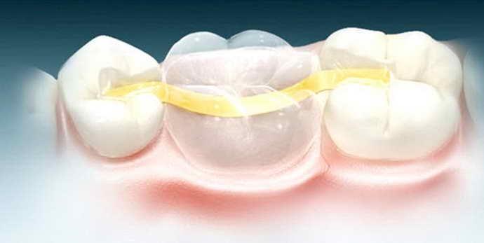 Особенности процедуры микропротезирование зубов