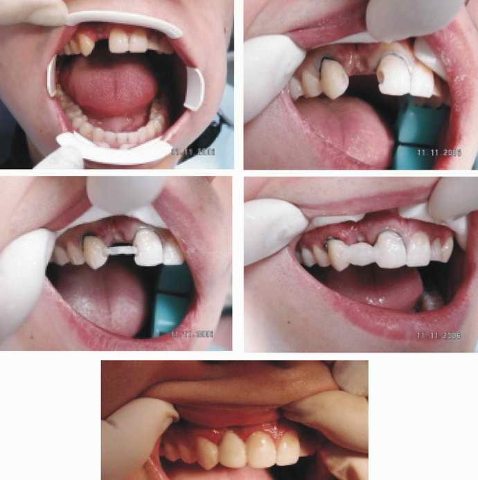 Последовательность действий при микропротезированию зубов