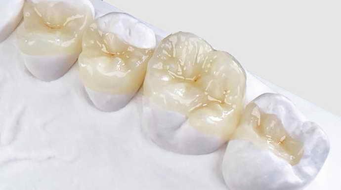 Керамика микропротезирование зубов