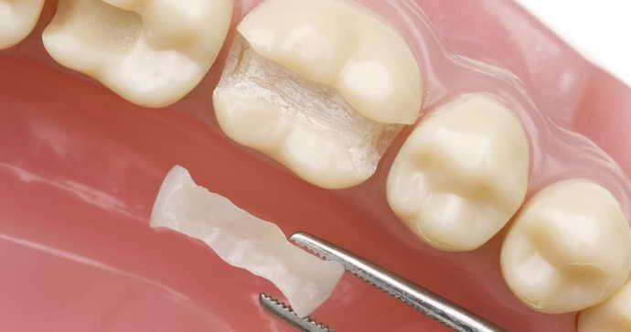 Металлокерамика микропротезирование зубов