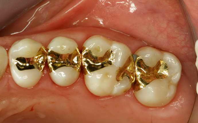 Сплавы драгоценных металлов в микропротезировании зубов