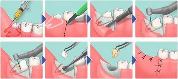 Процесс удаления зуба при флюсе