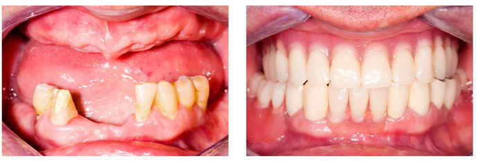 Классические несъемные зубные протезы