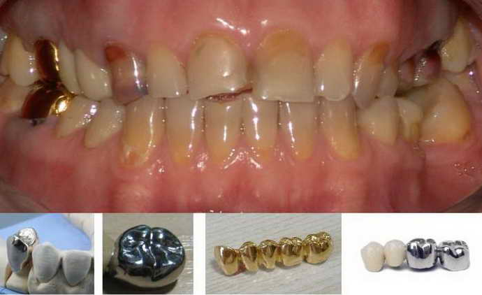 Коронки на зубы