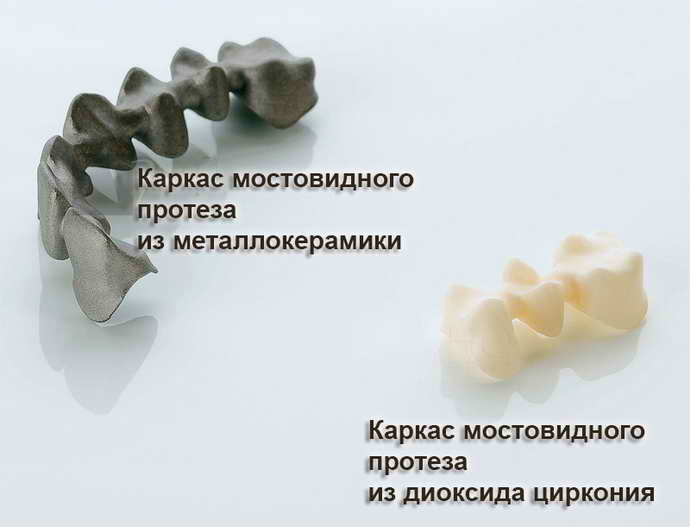 Мостовидные протезы