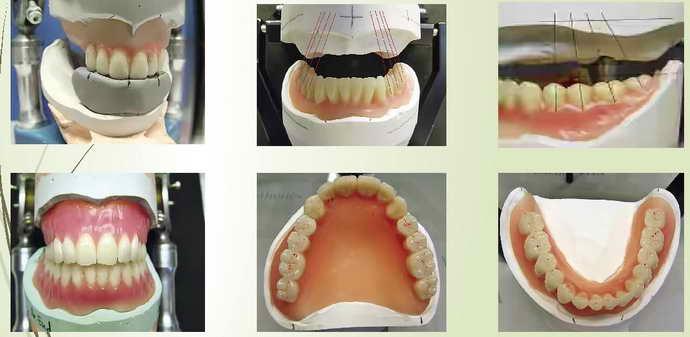 этапы установки протезов