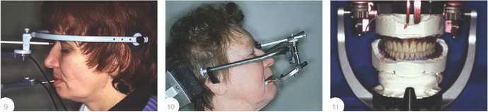 Особенности установки искусственных протезов