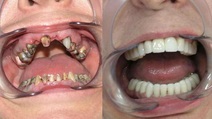 результат протезирования зубов