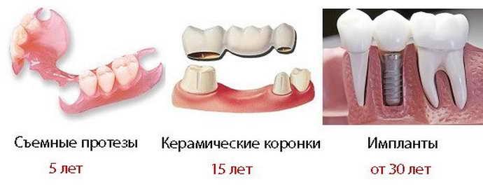 Плюсы и минусы несъемных конструкций для зубов