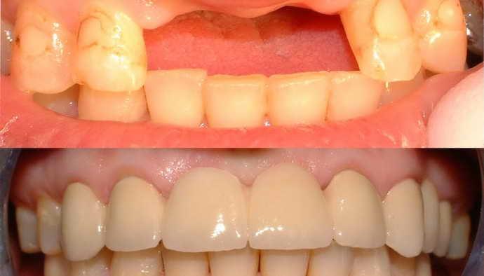 несъемные зубные протезы плюсы