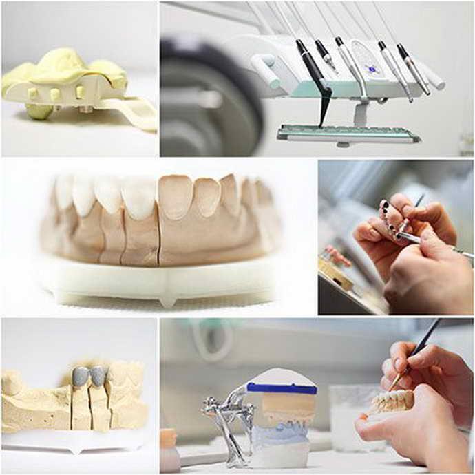 Недостаток при использовании мостовидных и других типов несъемных зубных протезов