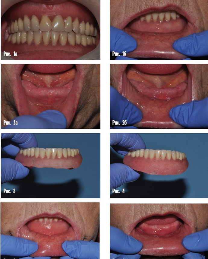Особенности протезирования нижней челюсти