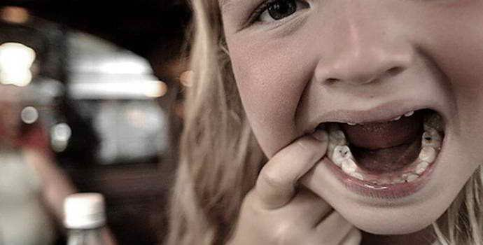 Пломбы для детей на молочные зубы