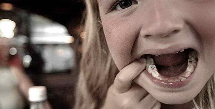 Сломались молочные зубы из за кариеса