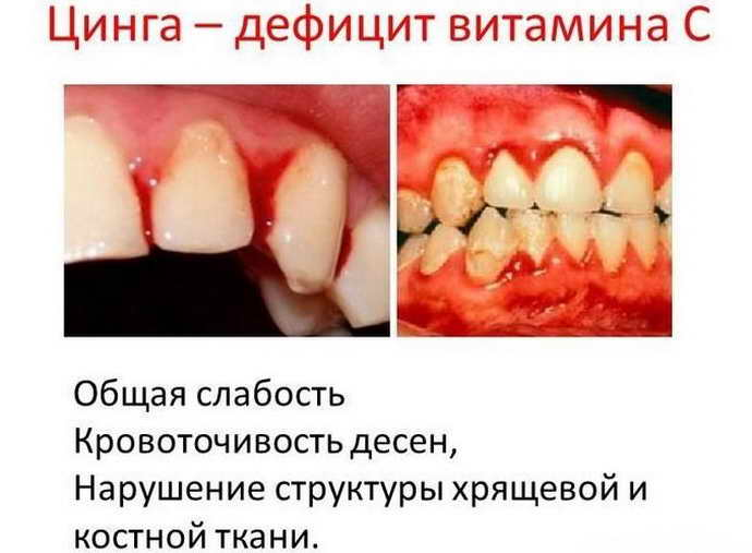Дефицит питательных веществ опух язык