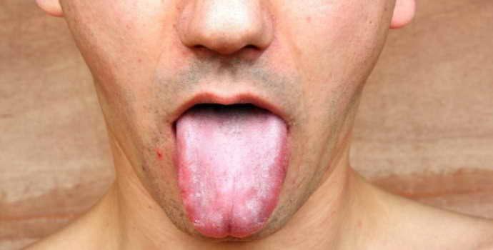 Как определить причины отпечатков зубов по бокам языка, и стоит ли беспокоиться по этому поводу