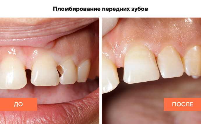 до и после реставрации зубов передних пломбой