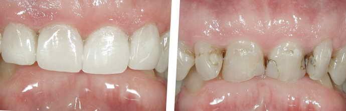 Вероятные осложнения после реставрации передних зубов