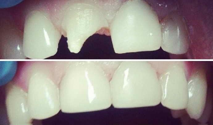 Какие пломбы предпочтительнее для передних зубов