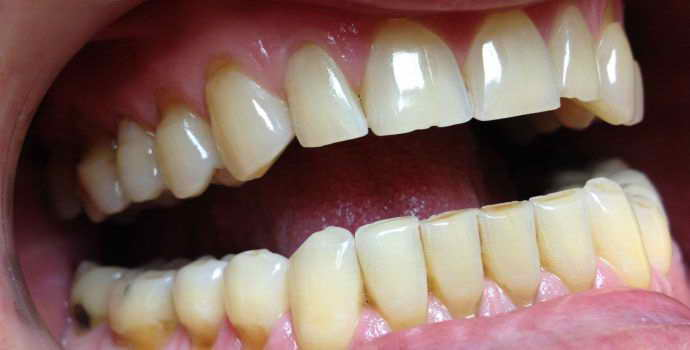 Что такое художественная реставрация зубов, чем она отличается от пломбы? – полезные статьи и советы на Kiev.Dental