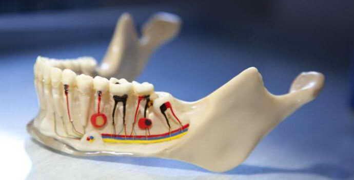 Пломбирование зубов гуттаперчевыми штифтами – лечение, недостатки и плюсы