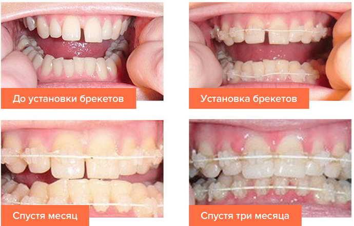 Лечение зубов брекетами Основные этапы и их особенности