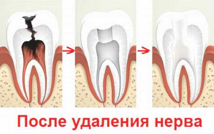 потемневшие зубные под пломбой