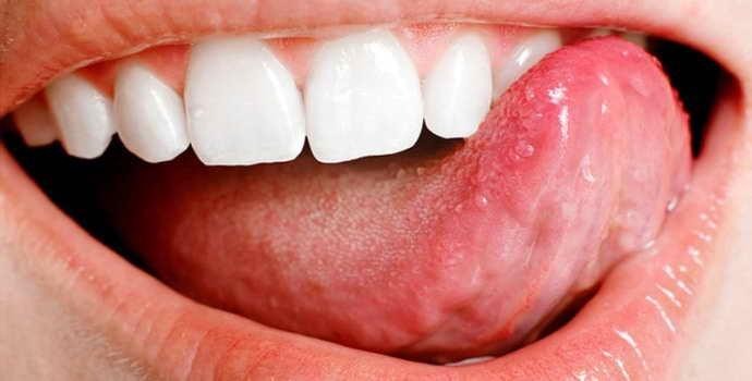 Под языком шишка: причины появления и лечение