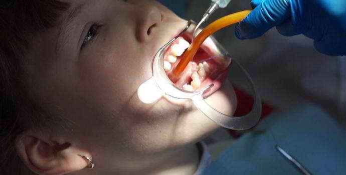 Подрезание уздечки под языком у детей