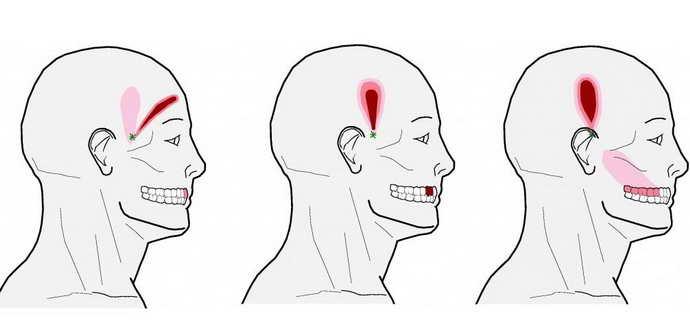 Возможные осложнения после удаления зуба мудрости