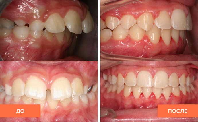 Припарирование перед винирами при неестественном положении зуба
