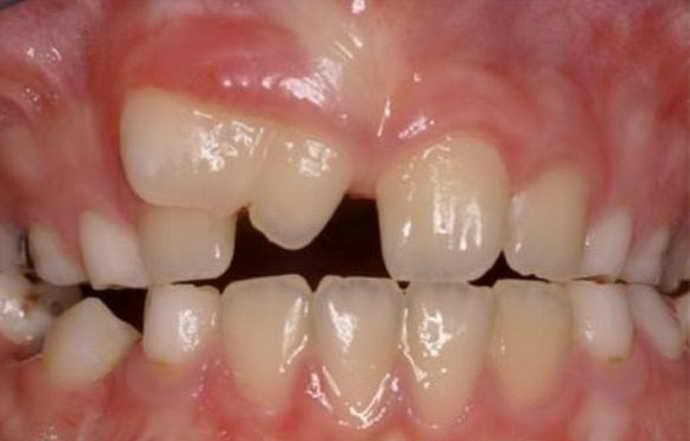 Специфика обработки зуба при различных дефектах
