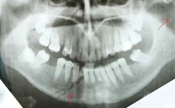травма в области нижней челюсти