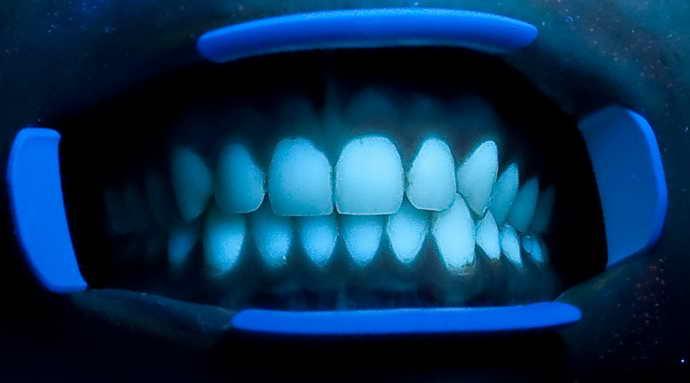 флюоресценция и пришеечный кариес