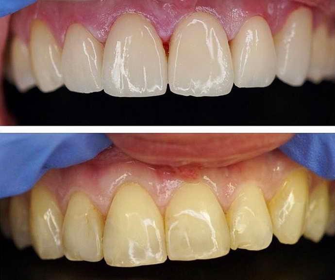 Протезирование на «живых» зубах