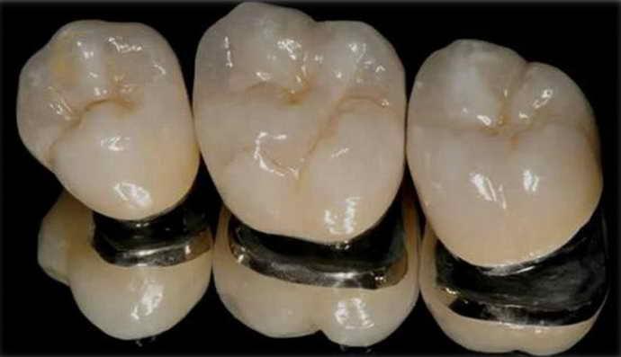 Металлокерамические протезы внешне неотличимы от здоровых коронок