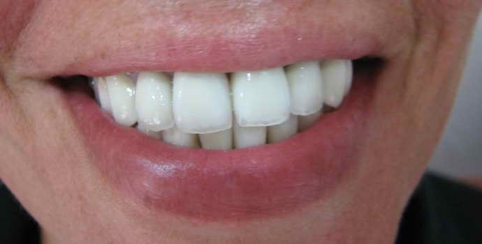 Достоинства и недостатки зубного протезирования металлокерамикой