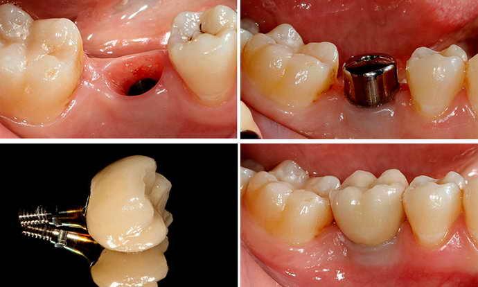 протезирование на имплантах преимущества