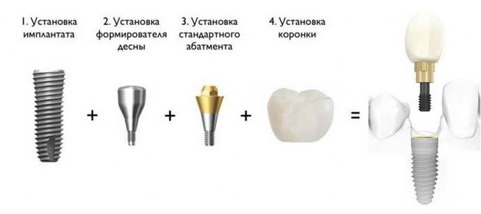 Сроки проведения протезирования