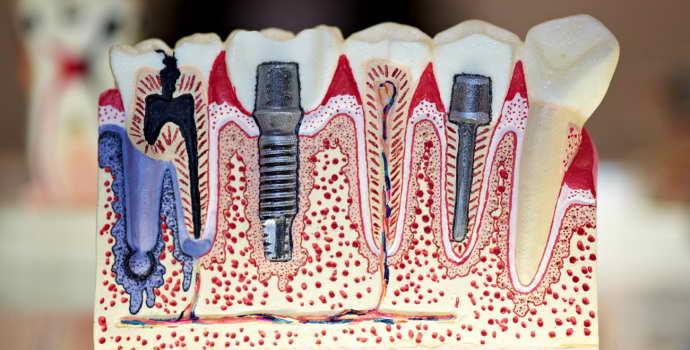Когда применяют балочный протезы на имплантах в стоматологии