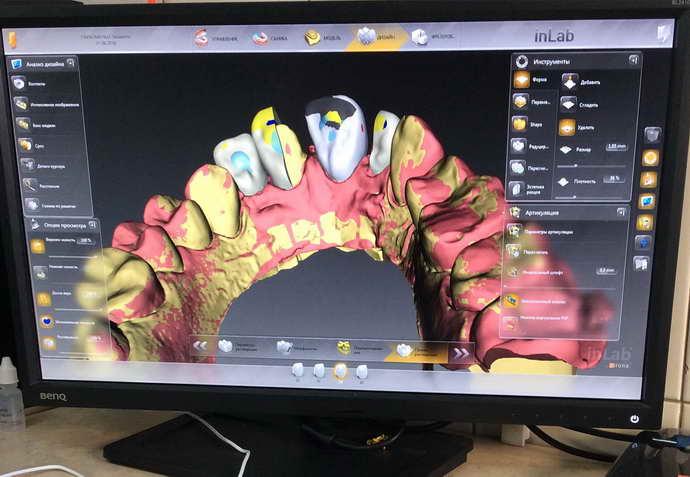 Преимущества и недостатки протезирования без обточки зуба