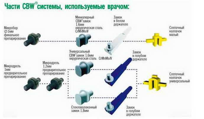 преирмущества протезирования по системе CBW