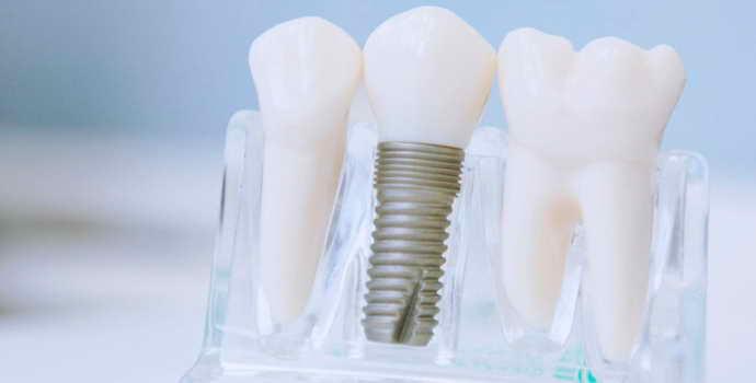 Протезирование зубов коронками: материалы, установка, срок службы