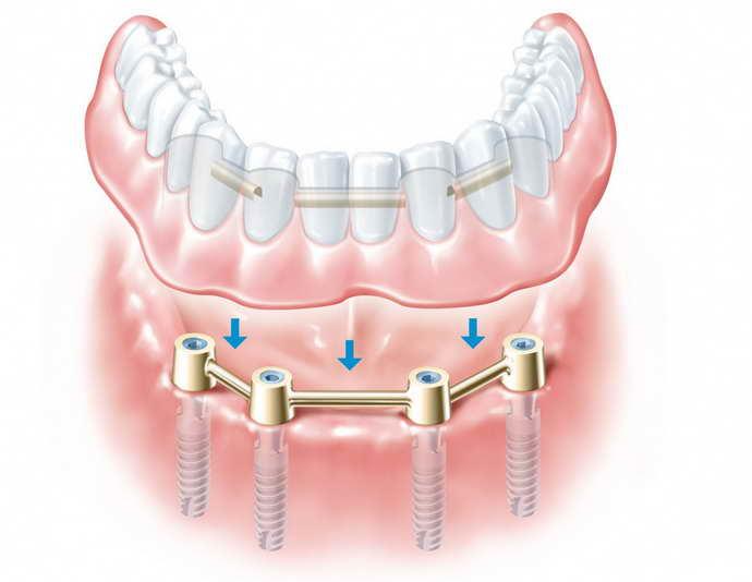 Несъемное протезирование передних зубов