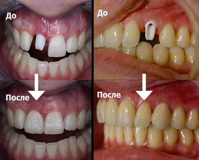 Имплантация yg передние зубы