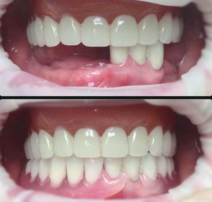 Нейлоновые протезы на передние зубы