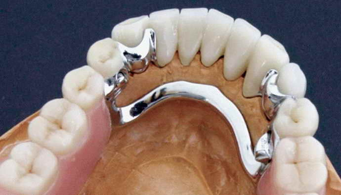 Бюгельное протезирование передних зубов