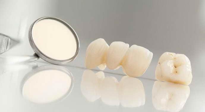 Современные несъемные конструкции на передние зубы