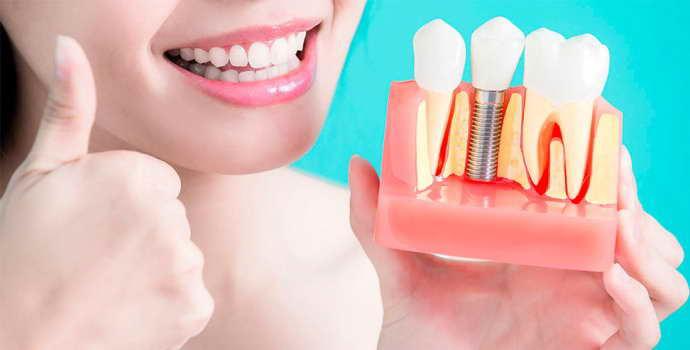 Какие зубные протезы лучше поставить, если вообще нет зубов?